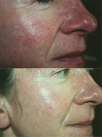 Acne Treatment 1.jpg