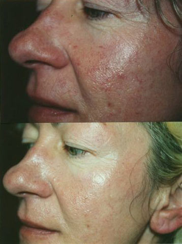 Acne Treatment 2.jpg