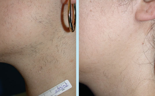 pulsed light hair removal